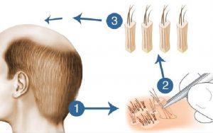 FUE Hair Transplant in Karachi