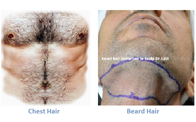 Hair Transplant using chest and beard hair