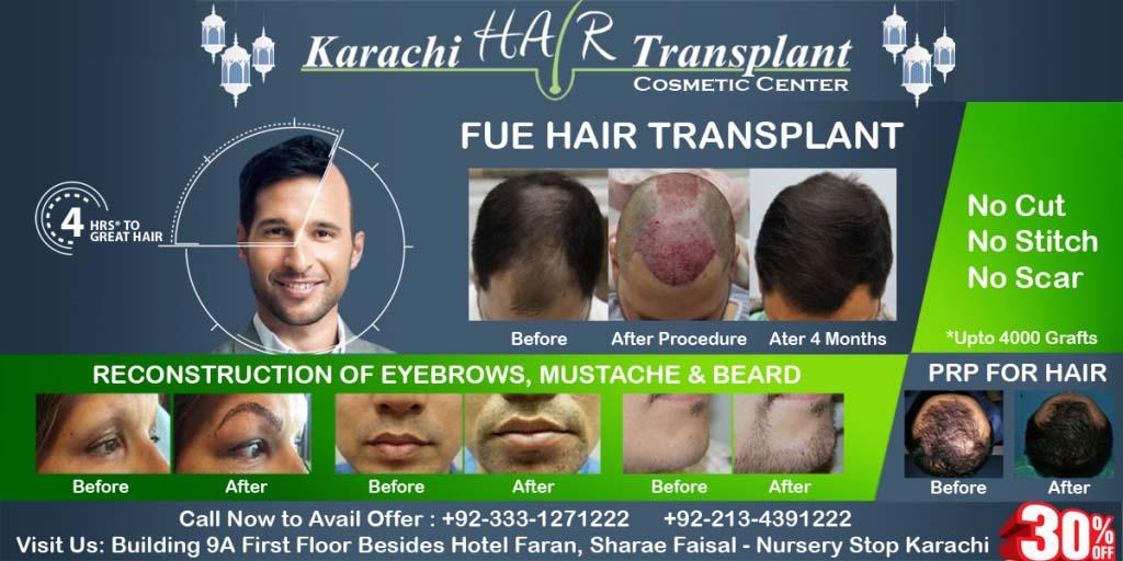 FUE Hair Transplant in Karachi banner